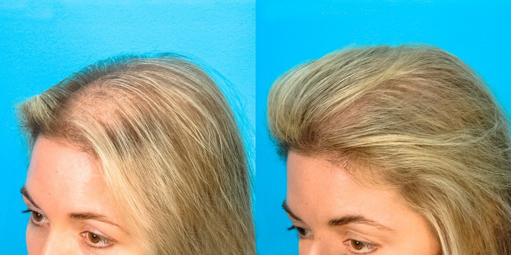 Miraculeux-Shampoing-Fait-Maison-Pour-Une-Pousse-Cheveux-3-Fois-plus-accélérée-1