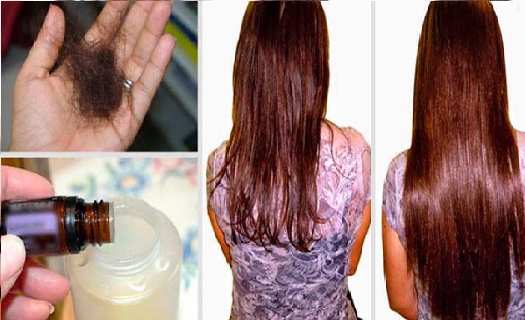 Ajoutez ceci votre shampoing et vitez la chute de vos cheveux pour toujours r sultats Coiffure mariage facile longueur cheveux